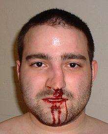 accidents (Broken nose)
