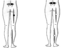 TENS Electrode Placement for sciatica