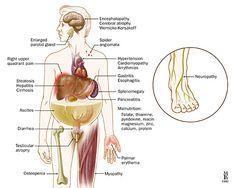 30 Signs Of Liver Damage Ideas Liver Fatty Liver Fatty Liver Symptoms