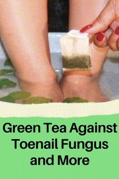 Green tea is known for its health benefits, but did you know it can also be used as a nail fungus treatment? For mild cases of toenail fungal infection, home remedies can be a valid option to kill nail fungus. Click to read more about how to get rid of nail fungus with green tea. Toenail Fungus Home Remedies, Fungal Infection, Toe Nails, Fungi, You Nailed It, Health Benefits, The Cure, Personal Care