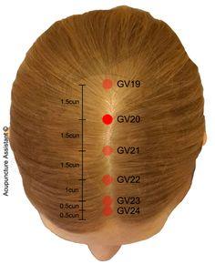 GV20-Baihui-acupuncture-point