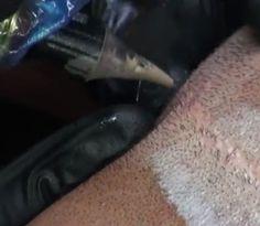 Effectieve egalisatie van littekens, haargroei stimulatie, anti-rimpel behandeling, tepelhof reconstructie en striae behandeling, het kan met dermatografie