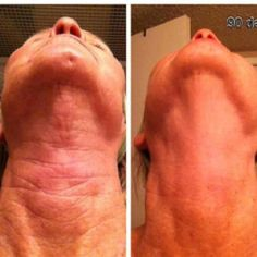 Wow! 90 day results. Nerium Age-Defying RESULTS! Wow! http://www.hl2day.nerium.com/