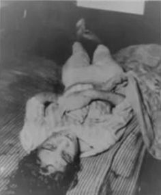 The body of Sylvia Marie Likens (16). In 1965 Likens and her sister were left in the care of Gertrude Baniszewski who brutally tortured and murdered her in the basement.