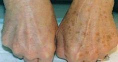 Les taches sur les mains ont tendance à apparaître avec l'âge. Mais il y a également d'autres facteurs qui favorisent leur apparition, comme le soleil. Plus
