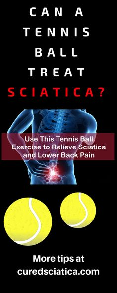 Here's some sciatica treatment tips. Have a plan of attack when using these tips. Great sciatica treatment plans are a… - Top Trends Sciatica Pain Treatment, Sciatica Pain Relief, Sciatic Pain, Sciatica Stretches, Sciatica Symptoms, Treating Sciatica, Natural Headache Remedies, Nerve Pain, The Cure
