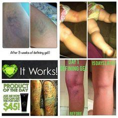 Varicose veins, eczema, psoriasis, razor burn, brighten a tattoo, dry cracked skin, extra flab? Defining Gel Krystalkwraps,myitworks.com