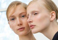 DIY-masken, der fjerner dine porer og blackheads