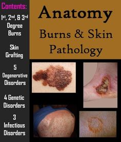 1000+ images about Wound care certification on Pinterest ...
