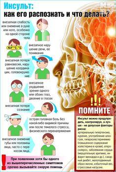 Чтобы попытаться не допустить инсульт, важно придерживаться здорового образа жизни. Инфографика: Катерина МАРТИНОВИЧ.