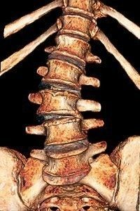 Degenerative Disc Disease shuts down the function of vital organs... 90% of the time, you won't even feel it