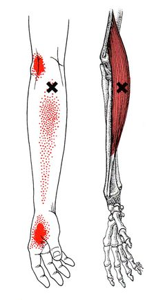 Brachioradialis trigger point diagram, pain patterns and related medical symptoms. The myofascial pain pattern has pain locations that are displayed in red and associated trigger points shown as Xs. Medical Symptoms, Dry Needling, Referred Pain, Muscle Pain, Muscle Soreness, Trigger Point Therapy, Chakra, Qi Gong, Physical Therapy