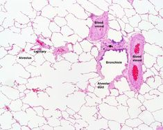 lung histology labeled - bronchiole, alveolar duct, alveoli | lab ...