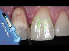 Caso Clínico. Restauraciones Adhesivas directas sobre dientes con alteraciones de color - 3M ESPE