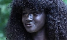 This Girl Was Bullied For Her Skin Color. Now She's A Badass Model. | Huffington Post