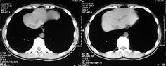 Tomografía computada del abdomen