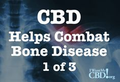 CBD helps combat bone disease and full spectrum CBD oil can be used as a natural treatment for Osteoporosis. I want my CBD! Bone Diseases, Health Benefits, Oil Benefits, Bone Health, Hemp Oil, Natural Treatments, Bones, Healing