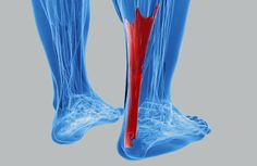 Do you struggle to run without pain at the back of your heels or calves? We tell you everything you need to know about Achilles Tendinopathy HERE! Let us know if this is you!