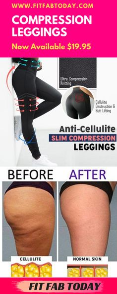 Anti - Cellulite Slim Compression Leggings  Features: Combats unwanted dimpling & puckered, cellulite filled skin by ultra-compression knitting  Bio-active Crystal-infused fabric to generate Infra Red Rays  Tightens & firms loose skin on thighs  Boosts blood circulation to plump up orange-peel skin  High-waisted & thickened woven for midsection & tummy flattening control  Accentuates your booty to give the illusion of rounder butt cheeks  #leggings #toned #weightloss #cellulite #workout Cellulite Workout, Anti Cellulite, Healthy Nutrition, Healthy Food, Orange Peel Skin, Health And Wellness, Health Tips, Easy Abs, Lose Weight