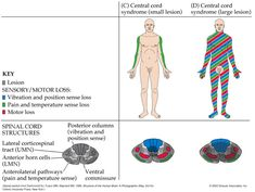 sacral sparing in central cord syndrome. Central cord syndrome (CCS) is a subset of spinal cord injury, characterized by more motor involvement of the upper extremities than the lower extremities and sacral sensory sparing Spinal Cord Lesions, Spinal Cord Injury, Occupational Therapy, Physical Therapy, Study Site, Nurse Art, Sensory Motor, Icu Nursing, Traumatic Brain Injury