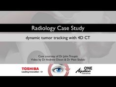 Awesome demo of 4D CT in Lung Cancer Staging on RadiologyChannel.org