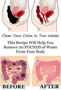 "colon full of stool ""Death begins in the colon"" - Hippocrates (Recipes to Remove Pounds of Toxic Waste From Your Colon)"