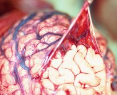 The arachnoid membrane being peeled away from the underlying cortex of the brain.