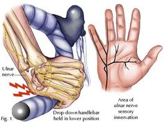 Cyclist's Hands: Overcoming overuse injuries