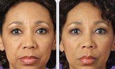 Try Facial Rejuvenation Workout Techniques To Decrease Profound Nasal Lines