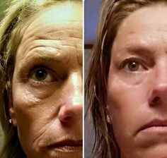 Facial Rejuvenation: Ways To Perform Facial Yoga Exercises For Eradicating Wrinkles And Yielding Fit, Gorgeous Skin
