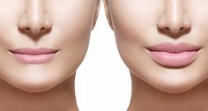 Looking for a fast and effective way to eliminate facial lines and wrinkles? Dermal fillers such as Restylane® Juvederm™ and Radiesse® offer fast results and improve the skin's appearance and texture while reducing and even eliminating lines and wrinkles.
