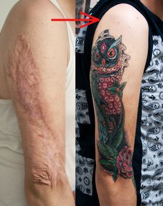 Tattoos Over Burn Scars | burn scar cover (healed) by tattoozone