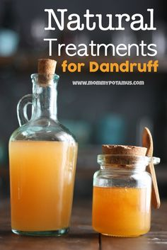 Natural Treatments For Dandruff and thinning hair!!! Must try honey and ACV!