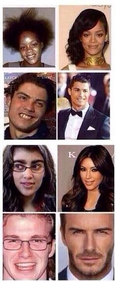 Wow then and now. Everybody has a chance to be beautiful. Lol