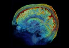 A team of scientists at Washington University in St. Louis is making extensive maps of the human brain.