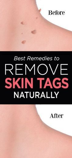People of all ages can be affected by skin issues and it is worth mentioning that the treatment can be quite problematic. There are over 3,000 different skin issues one can experience, among which warts, age spots, blackheads, moles, and skin tags the most prevalent. It is important to pay attention to your skin and …