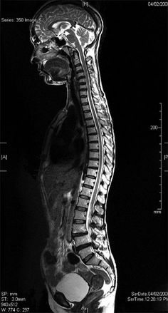 Annotated Color MRI Cervical Spine Anatomy Disc Herniation | Spine ...
