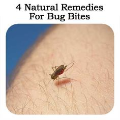4 Natural Remedies For Bug Bites