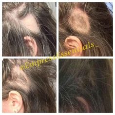 Hair Loss Treatment Hair growth Cream 1 Month Supply Balding Alopecia Thin Edges Bald Spots For Men or Women Black Castor Oil New Hair Growth, Healthy Hair Growth, Castor Oil For Hair Growth, Hair Growth Treatment, Bald Spot Treatment, Hair Loss Women, Losing Hair Women, Stop Hair Loss, Hair Loss Remedies