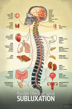 "Nurse Discover Chiropractic ""Subluxation"" Spine Organ Nerve Chart Subluxation Spine Chart - Chiropractic Patient Education Poster IdealPatient by MyChiroPractice Human Body Anatomy, Human Anatomy And Physiology, Human Spine, Weak Immune System, Preparation Physique, Hearing Problems, Skin Bumps, Spine Health, Medical Anatomy"