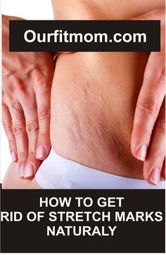 This article brings information on simple tips to help get rid of stretch marks.