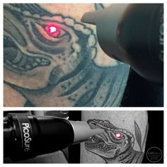 Laser tattoo removal in a fraction of the time as for Picosure tattoo removal maryland