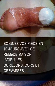 Soignez vos pieds en 10 jours avec ce remède maison .Adieu les durillons, cors et crevasses. #Pieds #Maison #Remede #Jours #Crevasses #Crevasse #Cors