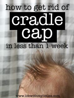 Not sure how to get rid of cradle cap? Here's an easy and inexpensive treatment that works in less than a week!