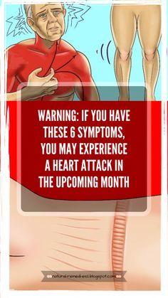 One of the main causes of death in the U.A is a heart attack. In heart disease caused of all deaths, or 1 in every 4 people died because of this. One of the main causes of death in the U.A is a heart attack. In heart disease … Health And Fitness Magazine, Health And Fitness Tips, Daily Health Tips, Health Advice, Causes Of Heart Disease, Diseases Of The Heart, Symptoms Of Heart Attack, Heart Attack Signs, Heart Disease Symptoms