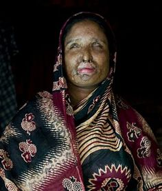 Nurbanu, 36, discovered her husband with another woman and divorced him — only to find herself doused in acid by him eight days later. Now, blind and with a completely scarred and mutilated face, Nurbanu has been forced to remarry her husband. Bangladesh