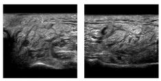 (Left) Transverse grayscale US shows acute parotitis in a patient receiving radiation therapy for H&N cancer Note diffuse enlargement of parotid gland rounded contours, heterogeneous parenchymal echo pattern, and subcutaneous edema  Multiple, hypoechoic bands (avascular on Doppler) are seen wthin parenchyma, representing interstitial edema. (Right) Corresponding longitudinal US shows extent of parotid involvement. Such glands are usually tender on transducer pressure Parotid Gland, Radiation Therapy, Ultrasound, Contours, Diffuser, Cancer, Bands, Note, Pattern