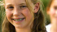 Flossing teeth with braces                                                      #SmileOasis.com
