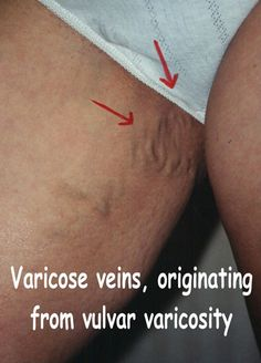 Final, sorry, Vulva varicose vains