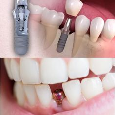 Dental implants have gone a long way to become the best solution for replacing missing teeth. Let's have a look at the teeth implant history. Dental Care, Implants Dentaires, Dental Implant Surgery, Oral Surgery, Dental Bridge Cost, Tooth Tattoo, Wisdom Teeth Funny, Fashion Styles